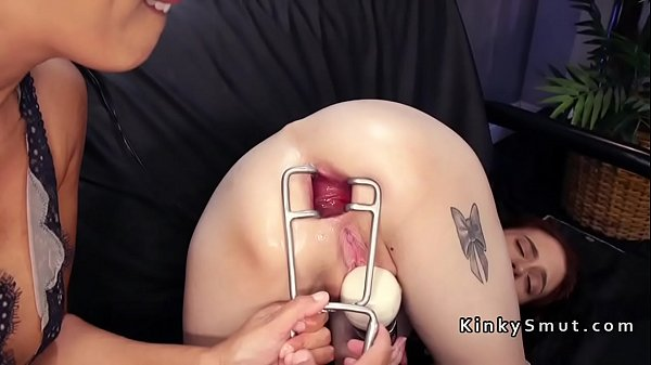 Lesbian, Pale, Doctor anal, Anal fisting, Lesbian fisting